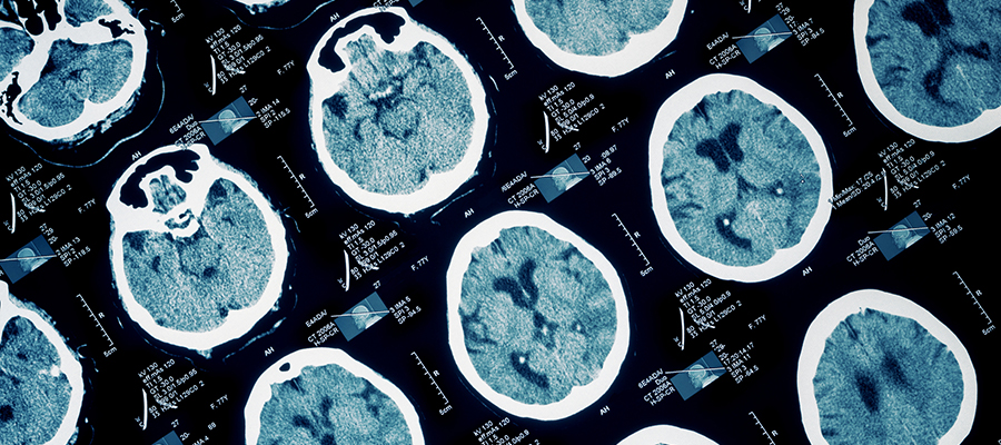 Brain Injury Awareness Month: CTE and the Dangers of Playing Football