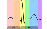 Will Understanding EKG Blocks Help Your Nursing Career?