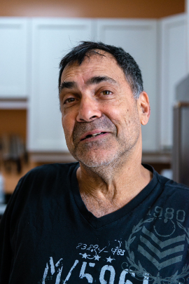 David Tuller poses for a photograph without his partial dentures. Tuller says during his period of intense dental care, he hated wearing temporaries and often braved the public with missing front teeth. (Heidi de Marco/KHN)